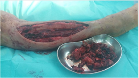 Extremity Soft Tissue Sarcoma Mimicking Traumatic Intramuscular